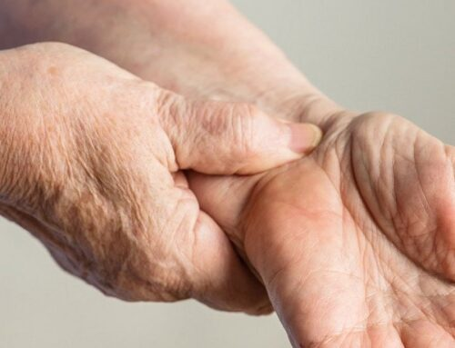 Carpal Tunnel Syndrome – CTS