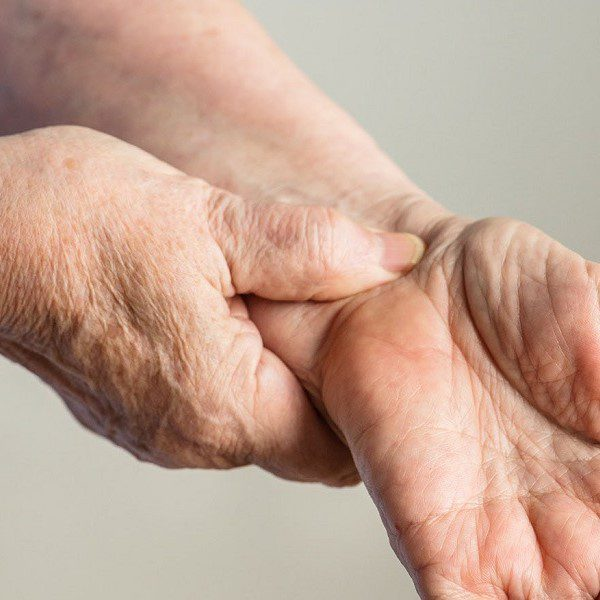 Carpal Tunnel Syndrome - CTS