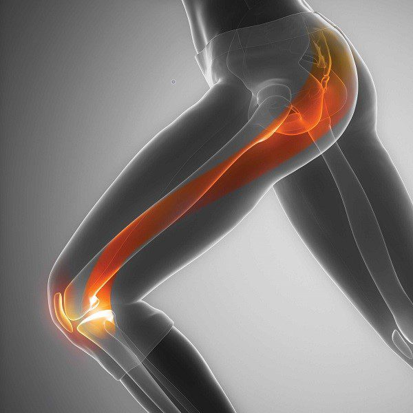 Iliotibial Band Syndrome - A runner's biggest enemy