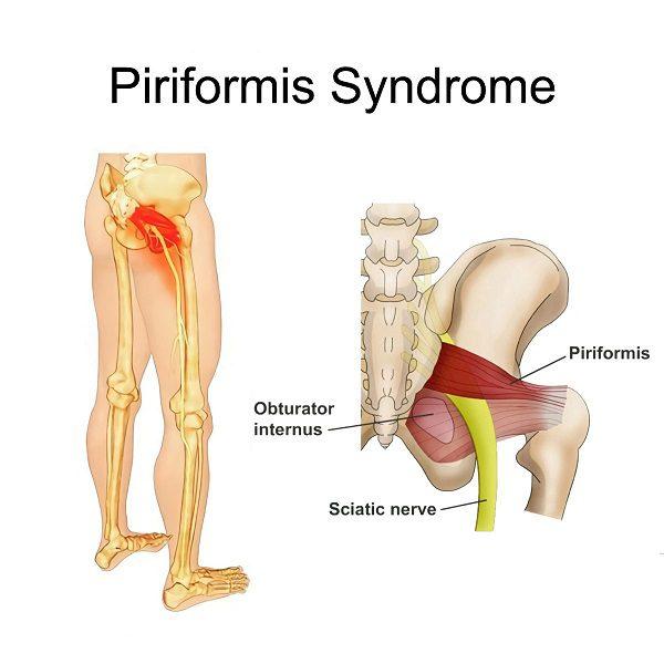 Piriformis Syndrome birmingham, manchester, london, liverpool, nottingham, derby, leeds, leicester, gloucester, worcester