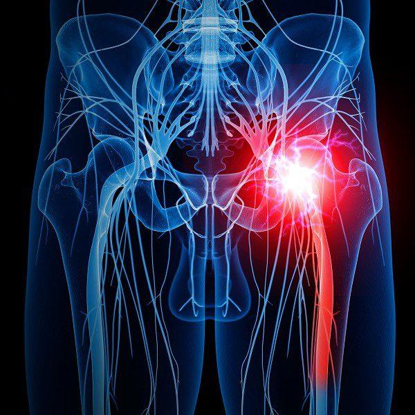 Sciatica - What a pain in the butt