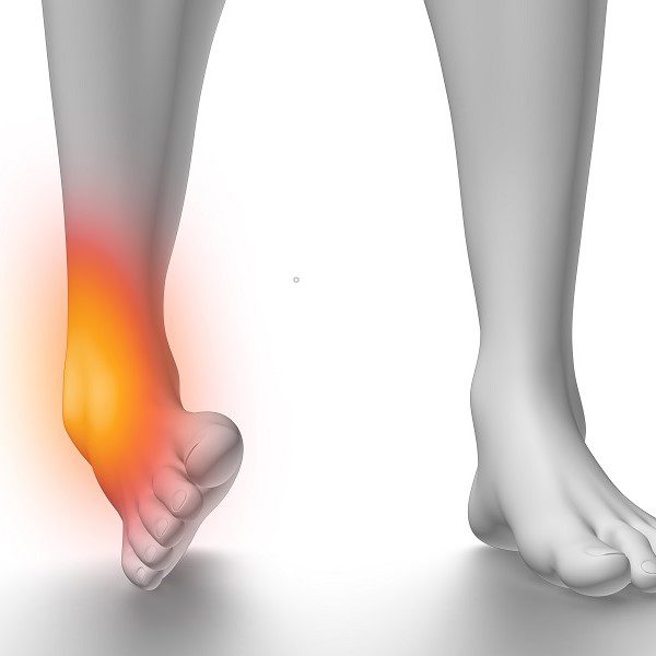 Lateral Ankle Sprain Birmingham, Manchester, Liverpool, London, Bournemouth, Plymouth, Leicester, Nottingham, Derby, Leeds 2