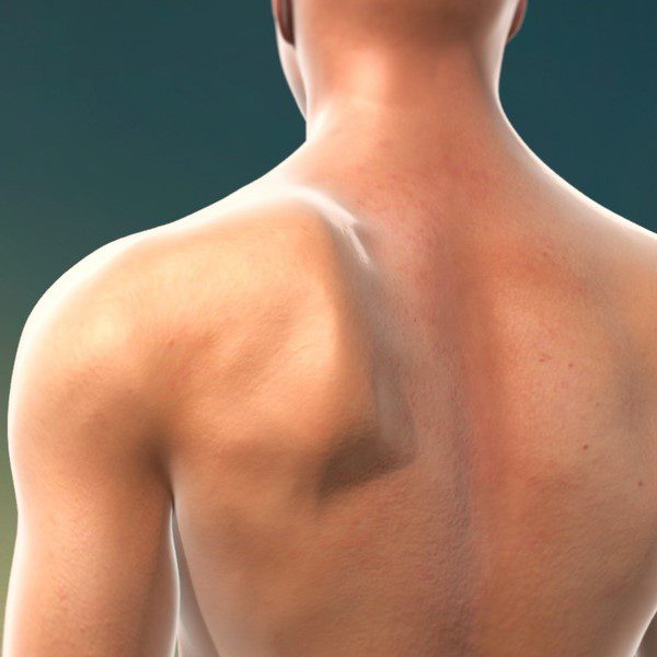 Winging Scapula birmingham, manchester, london, liverpool, nottingham, derby, leeds, leicester, gloucester, worcester, hereford, coventry, wolverhampton